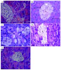Исследование положительного влияния использования Жука-знахаря (Dermestoides Ulomoides) при лечении диабета